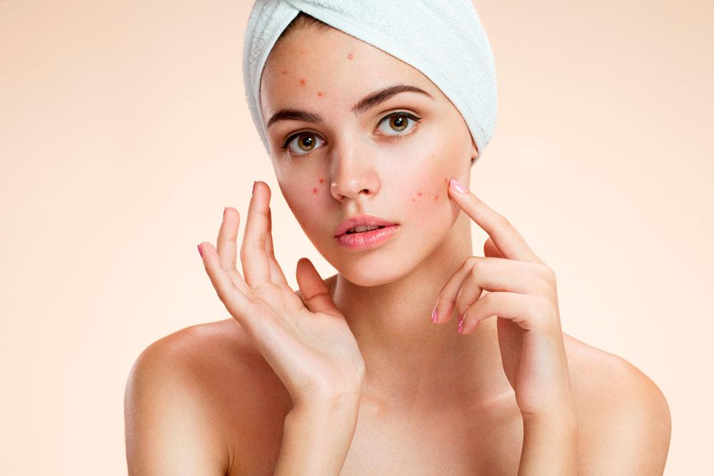 Acne adulta: principais causas e agravantes